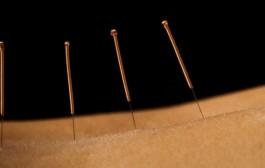 Sportsakupunktur